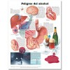 Dangers of Alcohol in Spanish (Peligros del alcohol) Anatomical Chart